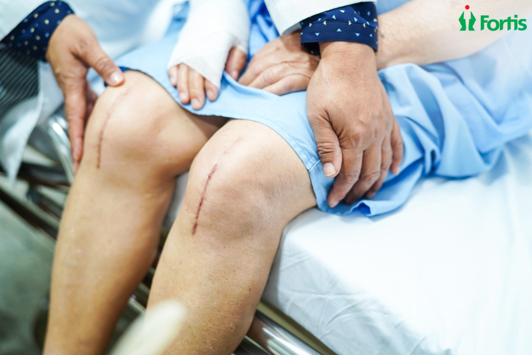 Total Knee Replacement in India
